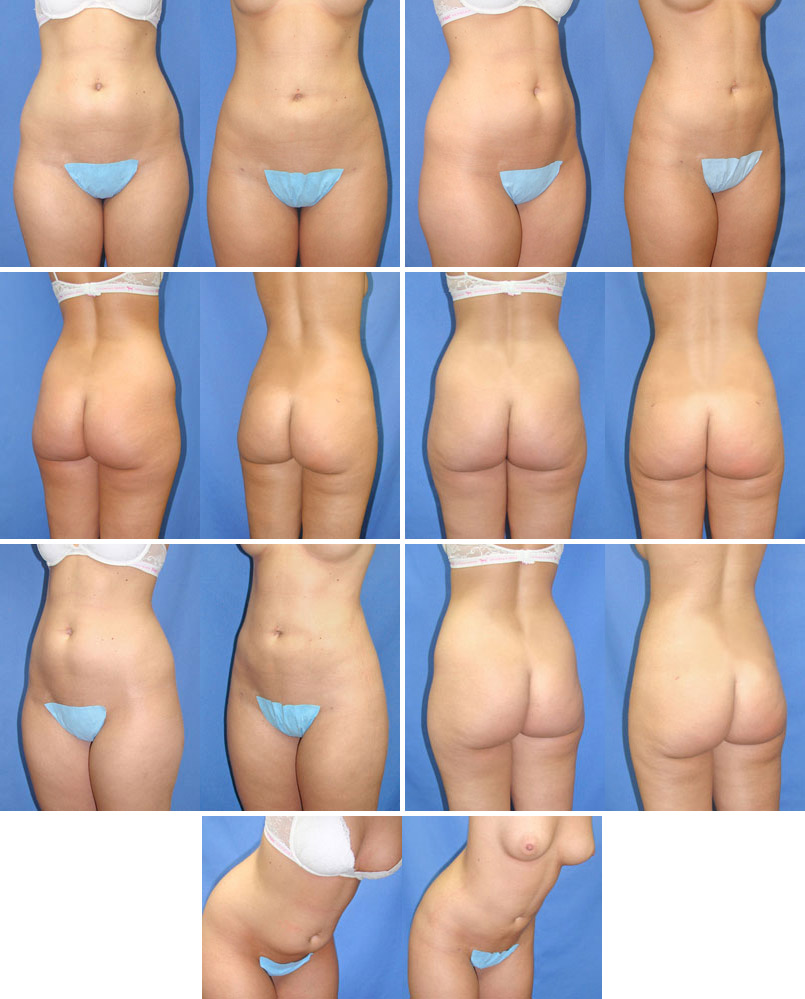 liposuction-surgery-michigan